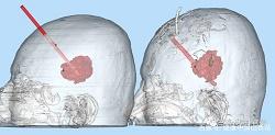 山西大医院用3D打印技术精准穿刺治疗脑出血